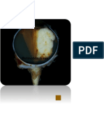 retinoblastoma resumen
