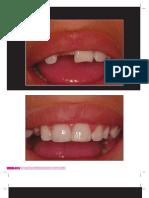 Caso Clínico - Restauração direita de dente anterior fraturado com pinos.