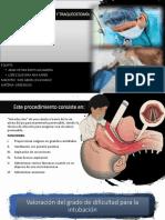 Intubación Endotraqueal y Traqueostomía