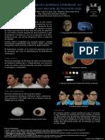 Rehabilitación protésica orbitofacial de paciente con secuela de mucormicosis