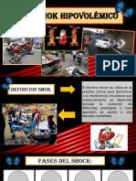 Diapositiva Shok Hipovolemico