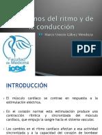 trastornosdelritmoydelaconduccin-130307140941-phpapp02