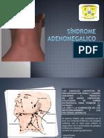 Síndrome adenomegalico.presentacion