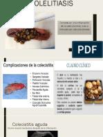 Colelitiasis.pptx