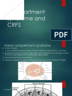 CRPS and Compartment Syndrome
