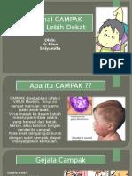 280888055-Penyuluhan-Campak.ppt