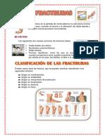 Fractruras