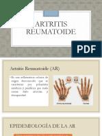 Artrosis reumatoide