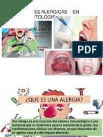 9. Reacciones alergicas