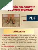 espolon_calcaneo_y_fascitis_plantar.ppt