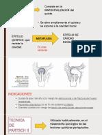 Exposicion Cirugia- Curetaje Periapical