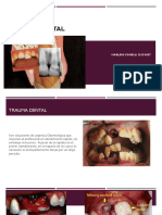 Trauma Dental