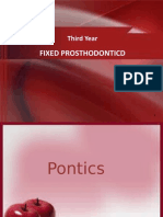 Pontic and Retainers