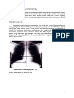 Gambaran Radiologi Pneumonia