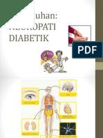 Neuropati Diabetik - Copy