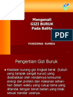 172695687-Gizi-Buruk-Ppt