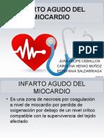 infarti mioca