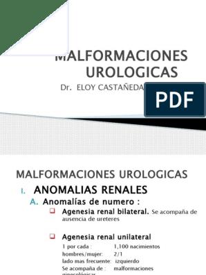 agenesia testicular unilaterale
