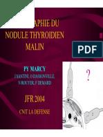 nodule thyroidien