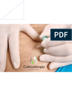 Carboxiterapia 10