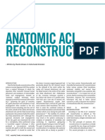Anatomic Acl
