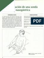 Sonda nasogastrica.PDF
