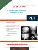 ENF ocupativas benignas de la nariz.pdf