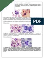 Alteraciones Morfológicas de Los Neutrófilos