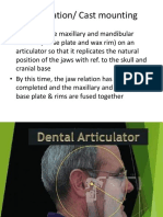 Articulation Cast Mounting and Teeth Arrangement
