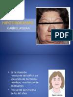 hipotiroidismo-150615031955-lva1-app6892