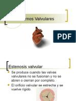 Trastornos Valvulares