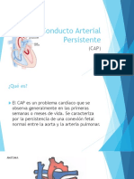 Conducto Arterial Persistente