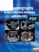 Ultrasound Use for Female Fertility