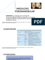 anquilosis