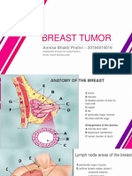 breast tumor