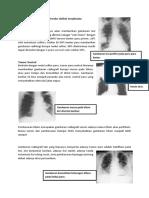 Tugas Radiologi Nomor 6