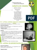 Radiografia de Craneo Proyecciones