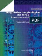 Diagnóstico imaginologico del torax.pdf