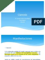 Cianosis