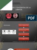 Lesiones Congénitas de La Laringe 2