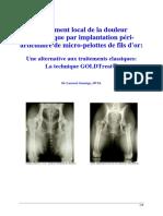Goldtreat Traitement Douleur Arthrosique Par i Nstillation PÈri Articulaire Dimplant Dor