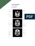 dokumen.tips_anatomi-dari-gambaran-ct-scan-kepala.docx