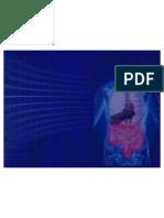 Hemorragia Tubo Digestivo Bajo