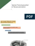 Teknik Operasi Transmyocardial Laser Revascularization