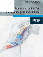 Dequervain's Syndrome