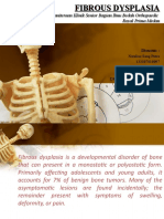 fibrous dysplasia.pptx