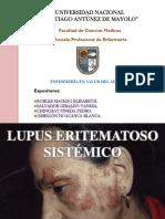 lupus-eritematoso-sistemico.pptx