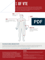 Signs of VTE Infographic