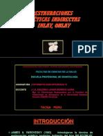 Onlay Inlay