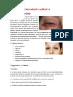 CONJUNTIVITIS ALÉRGICA Y PARASITARIA.docx